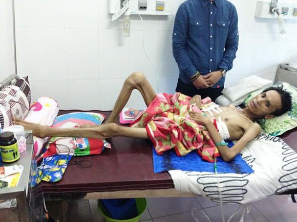 Hình ảnh chỉ còn da bọc xương khiến nhiều người xót xa của Thái Lan Viên.