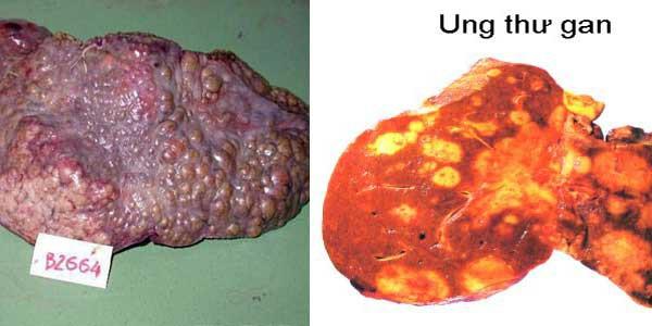 Đa số ung thư gan đều tiến triển từ xơ gan.