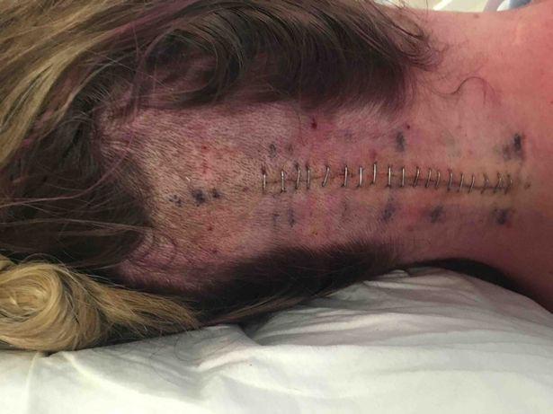Cô đã được phẫu thuật cắt bỏ khối u 2,2cm nhưng rồi điều tồi tệ nhất vẫn xảy ra.