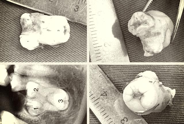 Răng sinh ba - dị dạng răng hiếm gặp - Ảnh 2.