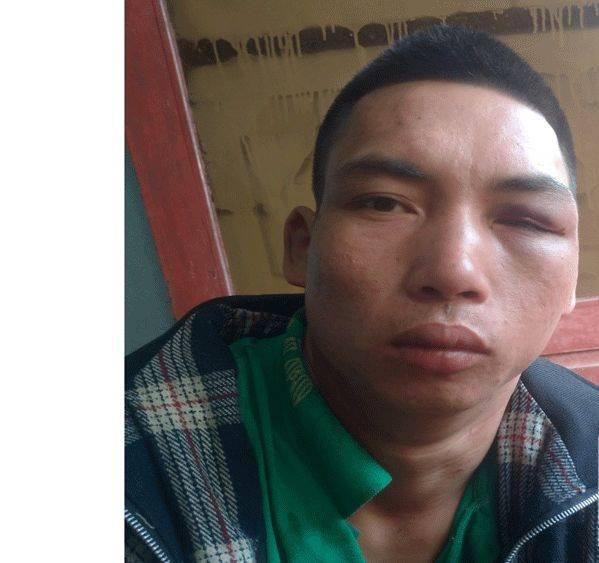 Bắc Giang: Chồng sát hại vợ dã man tại hiên nhà - Ảnh 1.
