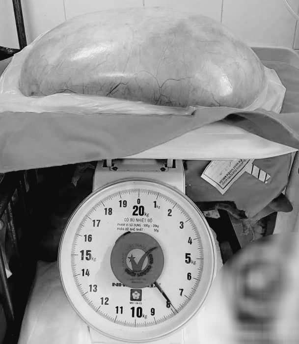 Khối u nặng gần 8kg được lấy ra khỏi cơ thể cô gái 22 tuổi ở Tuyên Quang