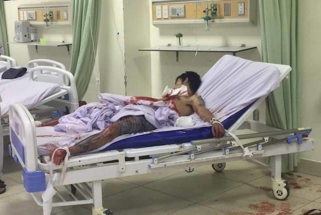 Nam bệnh nhân đang điều trị tain bệnh viện. Ảnh: Anh Minh.