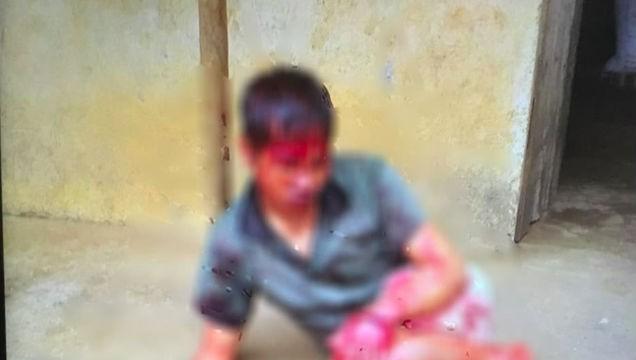 Nạn nhân bị chém máu me khắp người.