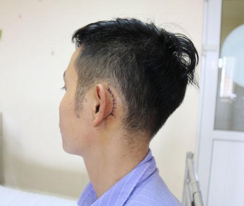 Phần tai trái bị tổn thương của người bệnh sau phẫu thuật