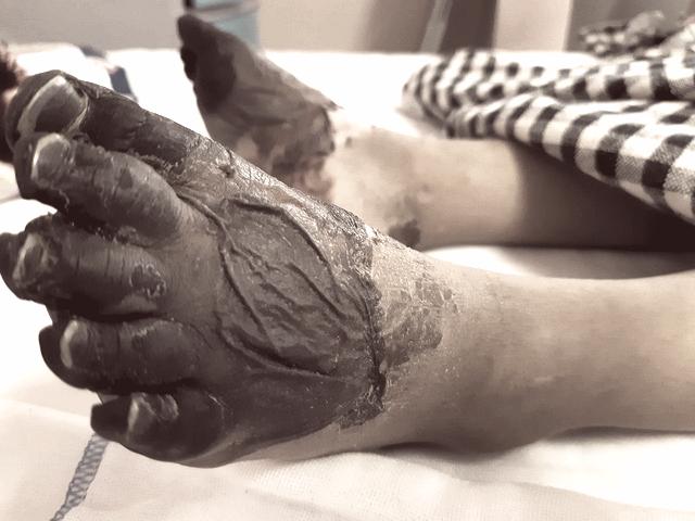 Bàn chân của một bé gái bị nhiễm khuẩn huyết không rõ nguyên nhân, buộc phải cắt bỏ để bảo toàn tính mạng.