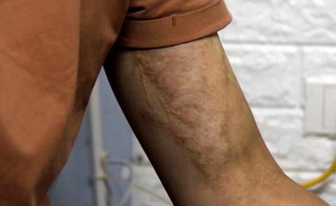 Sau nhiều năm điều trị, Nam quyết định sẽ sống cùng các vết sẹo do axit gây ra. Ảnh: Hoàng Lam.
