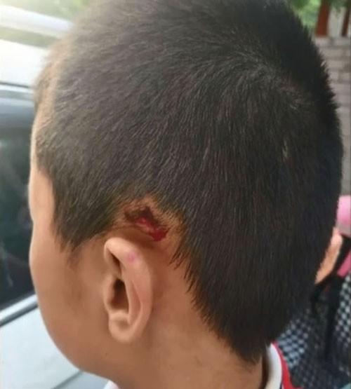 Vết cắt bên tai trái cậu bé sau khi bị thầy bạo hành. Ảnh: Pear.