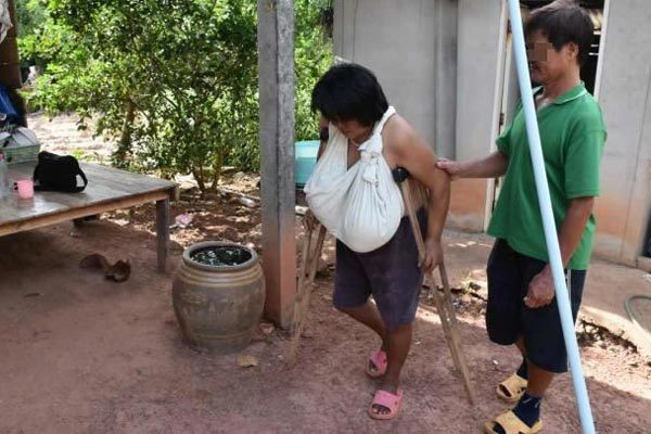 Lam Phrai phải dùng nạng để đi lại vì sức nặng của bộ ngực khủng. Ảnh: Phitsanulok Hot News
