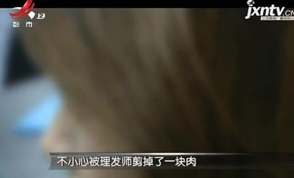 Cách xử lý bình tĩnh của Tiểu Trương khiến các bác sĩ thán phục, khen ngợi.