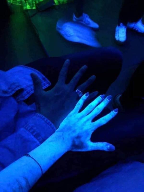Kinh hãi hình ảnh cơ thể cô gái phát sáng như zombie khi thoa kem dưỡng sau tắm trắng - Ảnh 2.