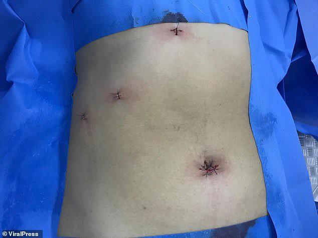 Người phụ nữ bị táo bón nhiều ngày, bác sĩ choáng khi lấy cả nghìn viên sỏi mật trong bụng  - Ảnh 2.