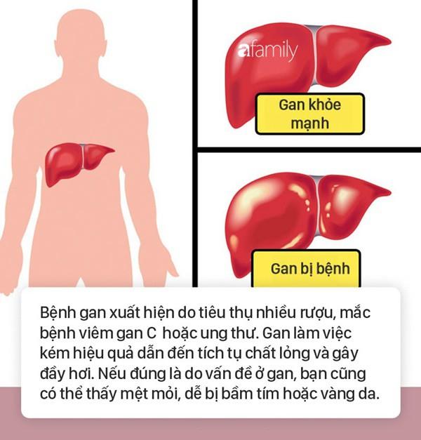 Tình trạng bụng đầy hơi có thể là dấu hiệu cảnh báo 6 bệnh nguy hiểm mà nhiều người không biết - Ảnh 2.