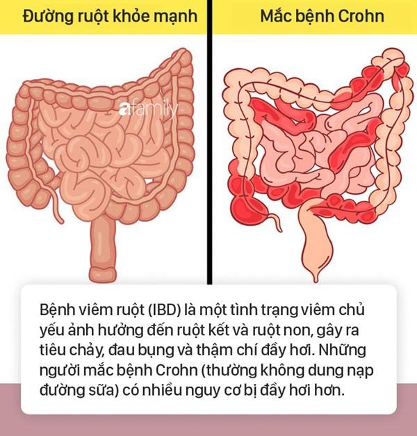Tình trạng bụng đầy hơi có thể là dấu hiệu cảnh báo 6 bệnh nguy hiểm mà nhiều người không biết - Ảnh 3.