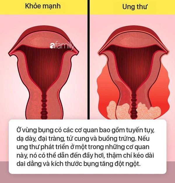 Tình trạng bụng đầy hơi có thể là dấu hiệu cảnh báo 6 bệnh nguy hiểm mà nhiều người không biết - Ảnh 5.