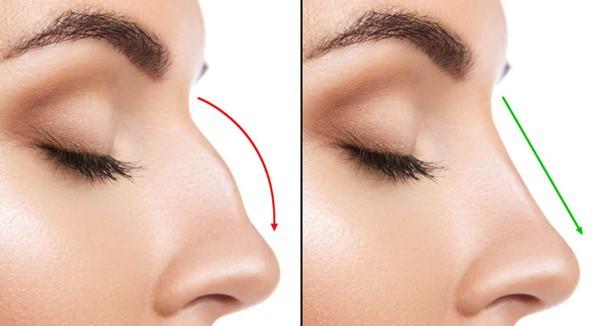 Tiêm chất làm đầy để nâng mũi, vừa kết thúc thủ thuật cô gái 19 tuổi lập tức bị mù 1 bên mắt - Ảnh 3.