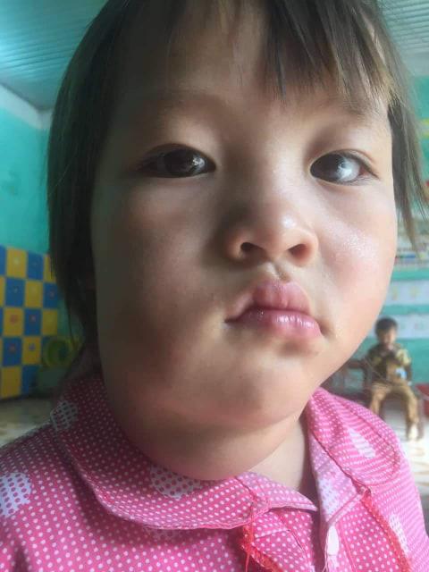 Xót thương bé gái vùng cao mồ côi mẹ, gương mặt méo lệch, nhà nghèo không có tiền chữa trị - Ảnh 2.