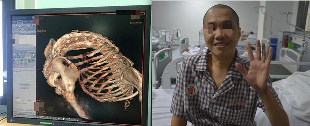Bệnh lạ khiến người đàn ông ở Hà Nội gãy gập như con tôm hàng năm trời - Ảnh 2.