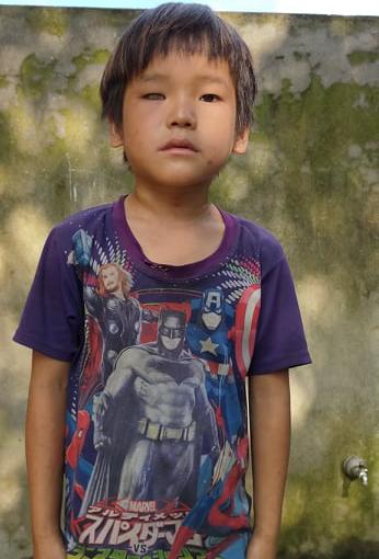 Bố mất sớm, mẹ bỏ đi, cậu bé dân tộc cần tiền chữa mắt - Ảnh 2.