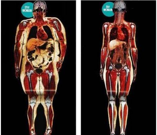 Phụ nữ có nội tạng nhiễm bệnh và tuổi thọ ngắn thường có 2 điểm hình tròn trên cơ thể: Dù ở độ tuổi nào bạn cũng nên kiểm tra ngay - Ảnh 1.
