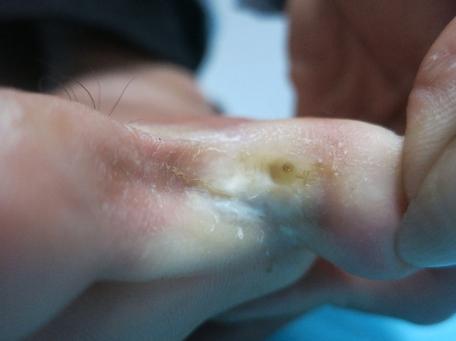 4 bệnh da liễu người dân tại vùng lũ cần cẩn trọng - Ảnh 3.