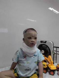 Gần 33 triệu đồng đến với bé trai 4 tuổi bị bỏng nặng do cồn - Ảnh 3.