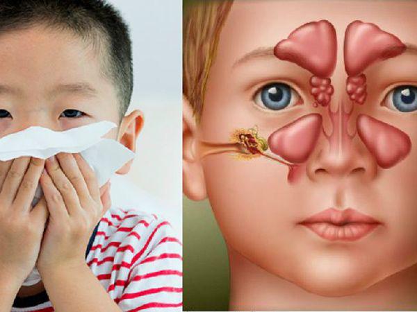 Viêm xoang ở trẻ em cần điều trị thế nào? - Ảnh 1.