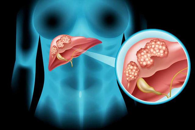 Cách phát hiện sớm và phòng bệnh ung thư gan - Ảnh 1.