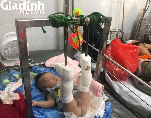 Thông tin mới nhất về sức khỏe của bé 4 tháng tuổi bị bố đánh gãy chân, xuất huyết não - Ảnh 2.