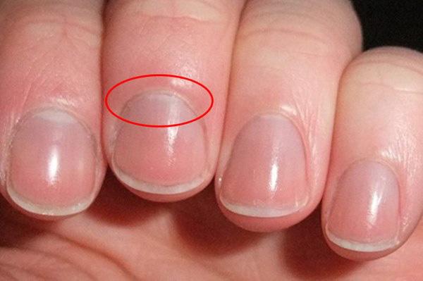 4 dấu hiệu lạ trên tay có thể là dấu hiệu cảnh báo thận của bạn có thể đang suy yếu, cần theo dõi thêm để bảo vệ sức khỏe - Ảnh 1.