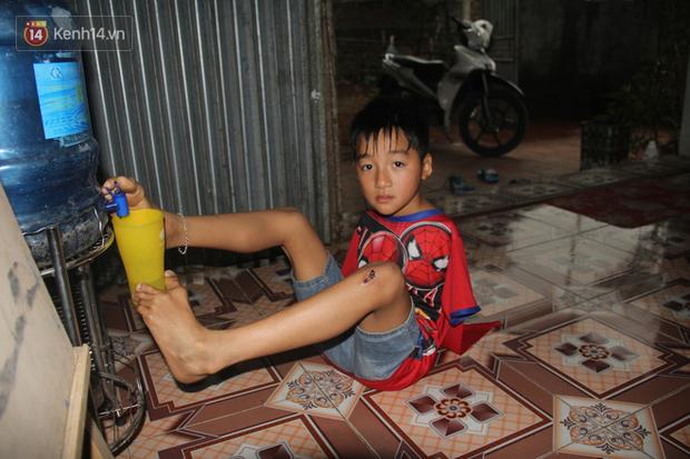 """Cậu bé không tay vẽ cuộc đời bằng đôi chân kỳ diệu và câu hỏi thắt lòng: """"Bao giờ tay con sẽ mọc hả mẹ?"""" - Ảnh 13."""