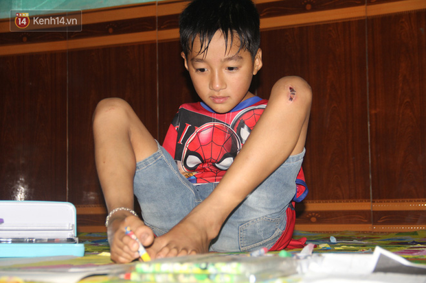 """Cậu bé không tay vẽ cuộc đời bằng đôi chân kỳ diệu và câu hỏi thắt lòng: """"Bao giờ tay con sẽ mọc hả mẹ?"""" - Ảnh 3."""