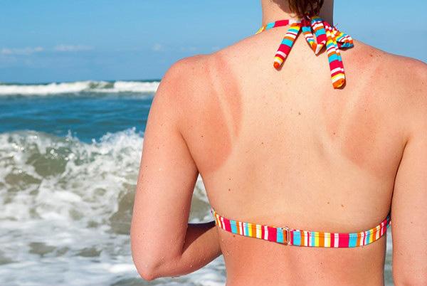 Áp dụng 5 cách chăm sóc da bị cháy nắng đơn giản giúp da lên tông nhanh chóng - Ảnh 1.