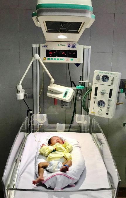Cứu sống bé 28 tuần tuổi mắc bệnh hoại tử dạ dày - Ảnh 1.