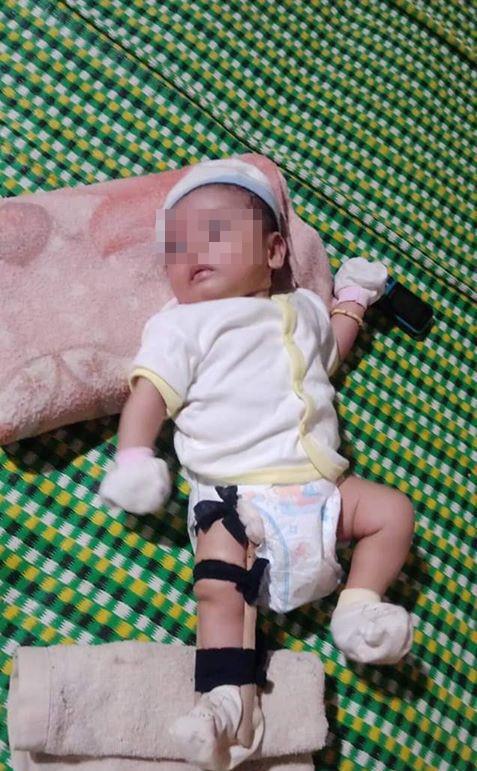 Lộ sự thật gây sốc vụ cha bị tố bạo hành, đánh gãy chân con 2 tháng tuổi - Ảnh 2.
