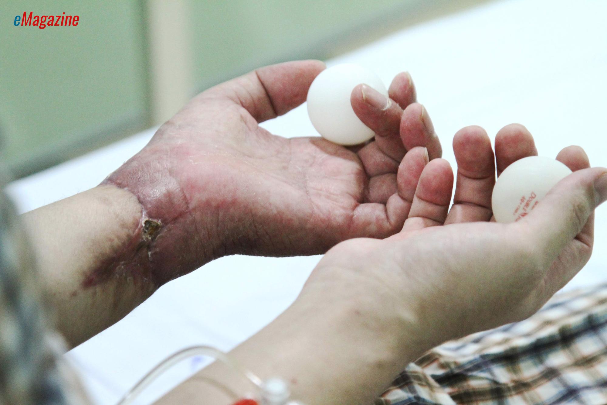 Kỳ tích bác sĩ Việt: Chuyện chưa kể về ca ghép chi đầu tiên trên thế giới từ người cho còn sống - Ảnh 8.