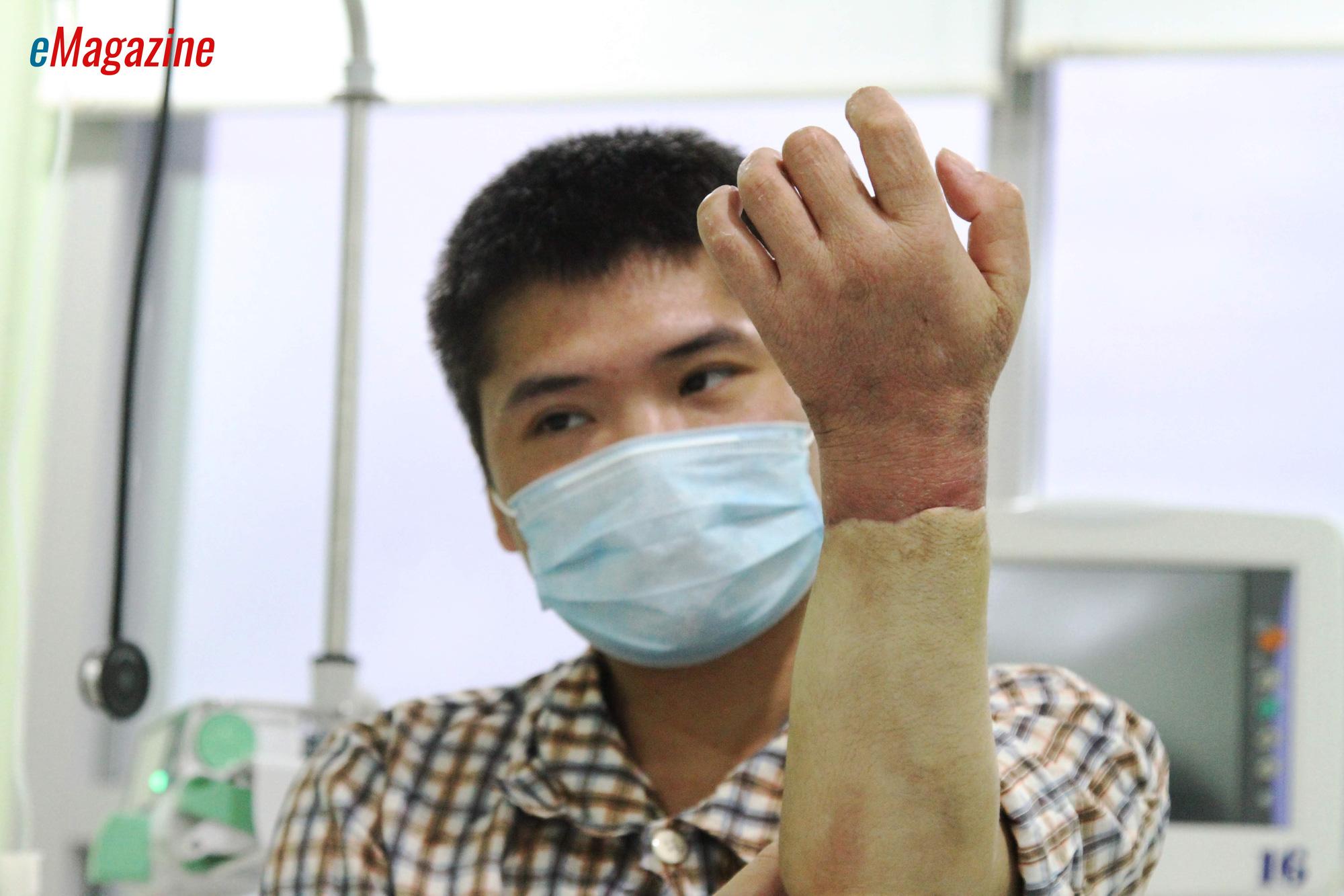 Kỳ tích bác sĩ Việt: Chuyện chưa kể về ca ghép chi đầu tiên trên thế giới từ người cho còn sống - Ảnh 3.