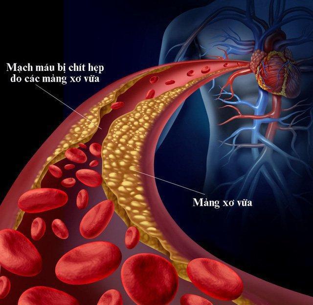 Bí quyết 2 trong 1 vừa giảm đường huyết vừa giảm mỡ máu từ nghiên cứu quốc tế - Ảnh 1.