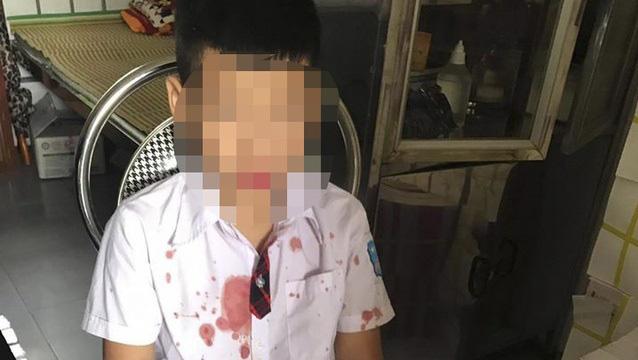"""Hệ lụy """"kép"""" với hai đứa trẻ không ngờ sau vụ học sinh lớp 1 bị bố của bạn hành hung ở Hòa Bình - Ảnh 2."""