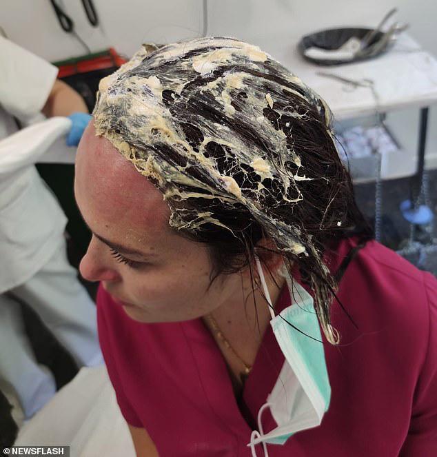 Người mẹ hoảng loạn tinh thần, phần da đầu bị hủy hoại vì hành động thiếu cẩn trọng của mình cũng là lời cảnh báo cho mọi người - Ảnh 2.