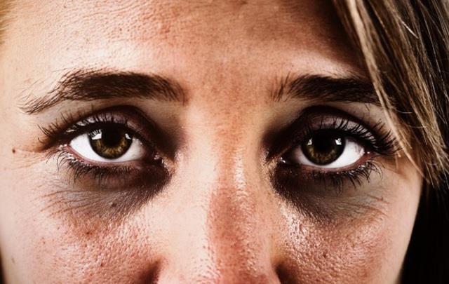 Xuất hiện quầng thâm ở mắt đừng chủ quan, rất có thể bạn đã mắc 1 trong 5 bệnh nguy hiểm này - Ảnh 2.