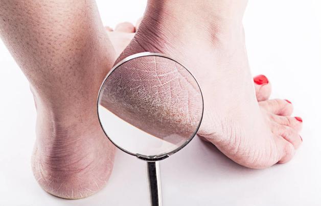 """Gót chân thường xuyên bị khô và nứt nẻ, coi chừng sức khỏe đang """"kêu cứu"""" - Ảnh 2."""