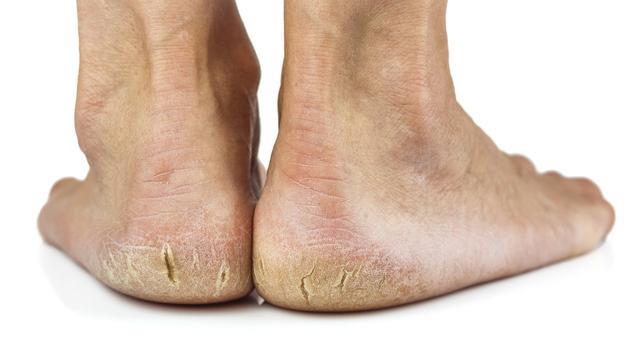 """Gót chân thường xuyên bị khô và nứt nẻ, coi chừng sức khỏe đang """"kêu cứu"""" - Ảnh 3."""
