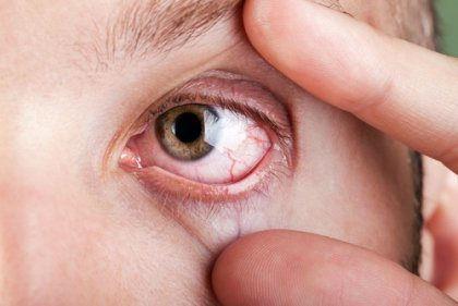Mắc căn bệnh gây mù lòa chỉ sau đục thủy tinh thể vì bỏ qua dấu hiệu với mắt nhìn mờ - Ảnh 2.