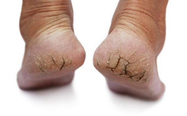 Có dấu hiệu này xuất hiện ở bàn chân thì đi khám ngay, đừng để lâu mà hối không kịp - Ảnh 2.
