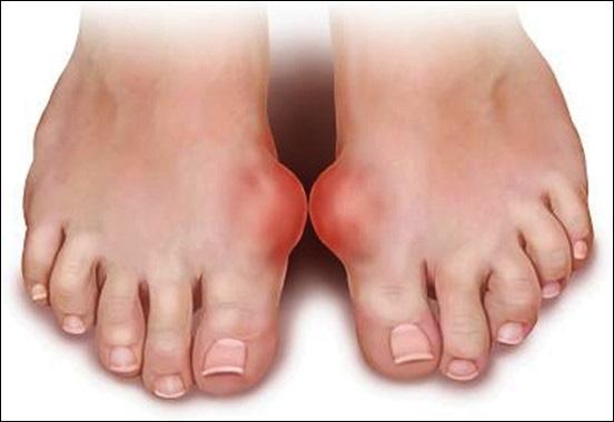 Có dấu hiệu này xuất hiện ở bàn chân thì đi khám ngay, đừng để lâu mà hối không kịp - Ảnh 9.