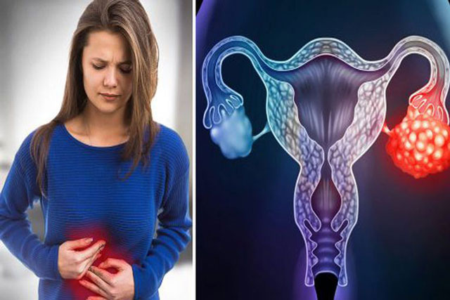Nếu bạn có 10 dấu hiệu này, hãy nghi ngờ ung thư buồng trứng - Ảnh 1.
