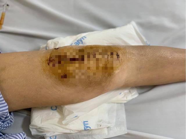 Lần đầu tiên Việt Nam phẫu thuật thành công thay khớp gối nhân tạo cho người mắc lao khớp - Ảnh 1.