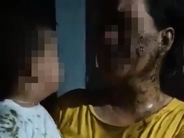Thương xót bé trai 2 tuổi bị người hàng xóm đổ chất thải lên người - Ảnh 1.