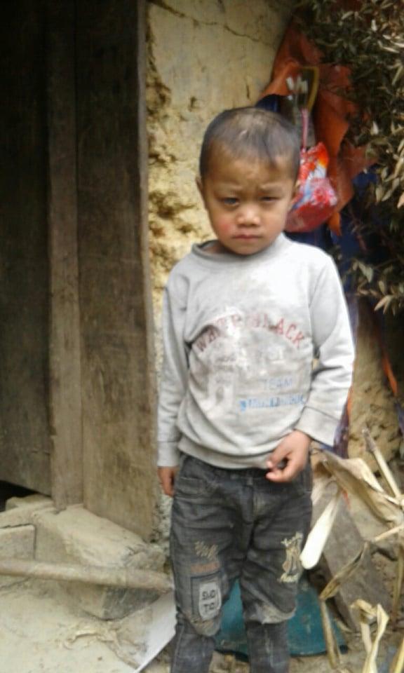 Mắt ngày càng lồi to, cậu bé dân tộc HMông nguy cơ bị mù vì không có tiền đi khám mắt - Ảnh 2.